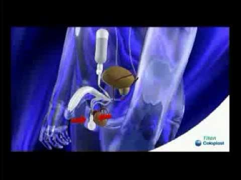 silicium penis implantater
