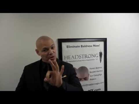 Scalp MicroPigmentation NY Latin Singer Giovanni cures bald