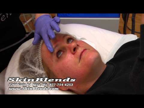 HydraFacial™ Demonstration from Skin Blends