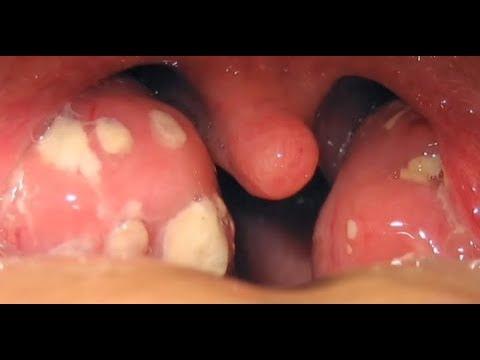 Tonsil Stones Youtube