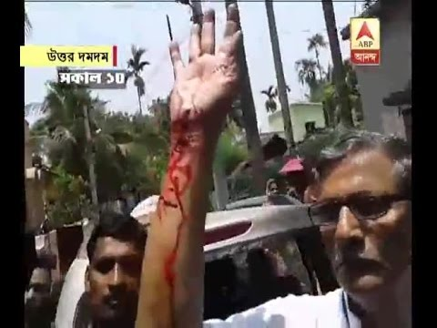 Bengal fifth phase poll: attack on CPM candidate of north Dumdum Tanmay Bhattacharya
