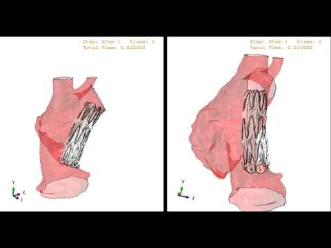 Patient-specific simulation of endograft apposition