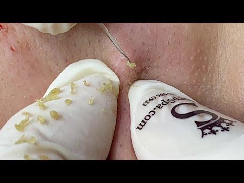Clean Blackheads On Cheeks And Forehead | Làm Sạch Mụn Đầu Đen Trên  Má Và Trán - SacDepSpa#141