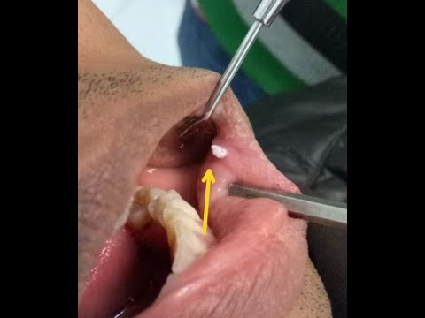 Mouth Warts/Oral Verruca Vulgaris and its treatment || dental issues