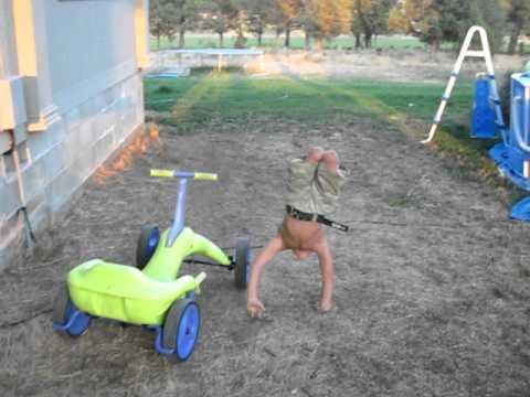 Amazing 5 year old with Arthrogryposis walking on