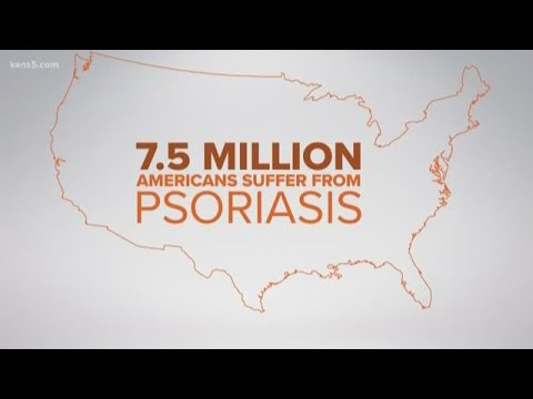 World Psoriasis Day brings awareness to the auto-immune disease