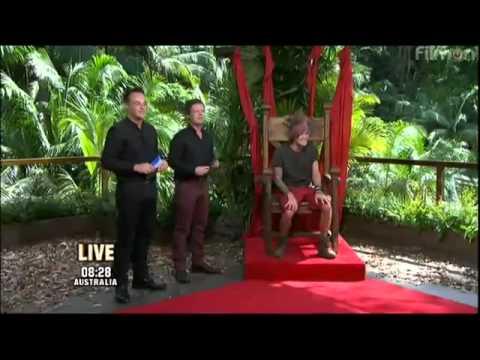 Dougie Poynter wins I'm A Celebrity 2011