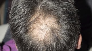 This is how stress affects hair loss
