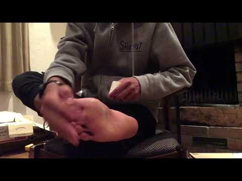 The best way of taping for plantar faschiitis