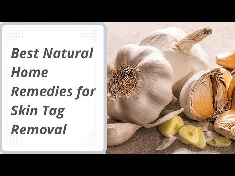 best-natural-home-remedies-for-skin-tag-removal