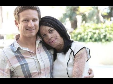 Turia Pitt and partner Michael Hoskin announce pregnancy on 60 Minutes