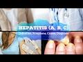 Hepatitis (A, B, C) - Definition, Symptoms, Causes, Diagnosis