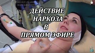 Наркоз.Как пациент засыпает и просыпается.Увеличение груди.Марк Бакаушин анестезиолог реаниматолог