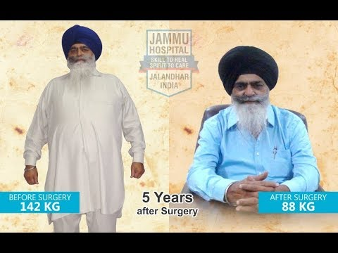 5 Years After Bariatric Surgery In India At Jammu Hospital Jalandhar