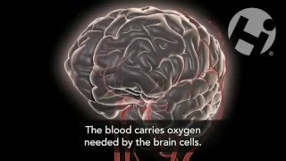 Video Ayman Azam Sarkar -Blood Flow to the Brain download MP3, 3GP, MP4, WEBM, AVI, FLV Juli 2018