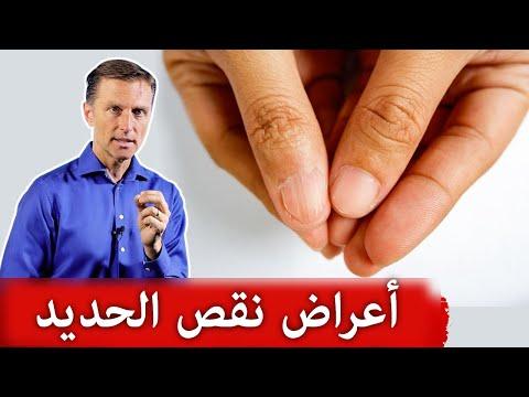 ١٠ أعراض لنقص الحديد وفقر الدم وأسبابه