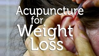 Acupuncture for Weight Loss - Acupuncture for Weight Loss