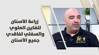 الدكتور خالد عبيدات - زراعة الأسنان للفكين العلوي والسفلي لفاقدي جميع الأسنان