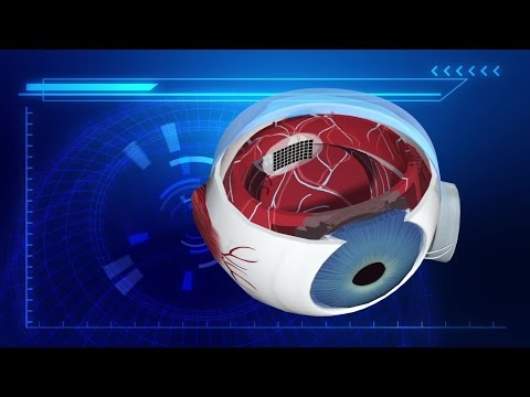 UK blind patients to be fitted with bionic eye