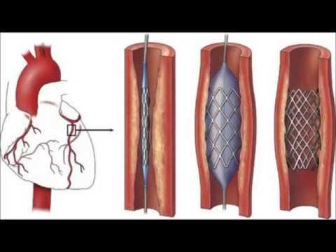 Dr Manish Bansal MD Interventional Cardiologist Jacksonville FL