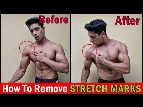 How to Get Rid of Stretch Marks | 3 Easy Ways & Tips to Remove STRETCH MARKS