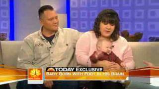 Miracle Baby; born with foot in brain