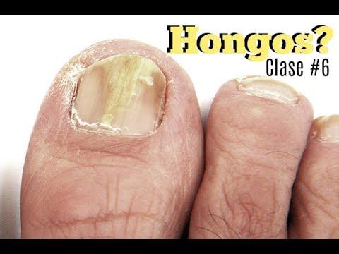 Clase #6 Hongos en las uñas ♥ Deko Uñas