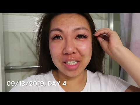 OXY Acne Medication | 28 Day Challenge Part 1