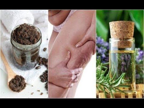 Vijf natuurlijke middelen