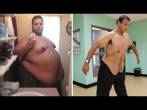 Troll To Swole: Internet Bully Loses 400lbs After Changing His Ways