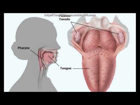 How To Treat Tonsil Stones Tonsilloliths Naturally | Home Cure For Tonsil Stones
