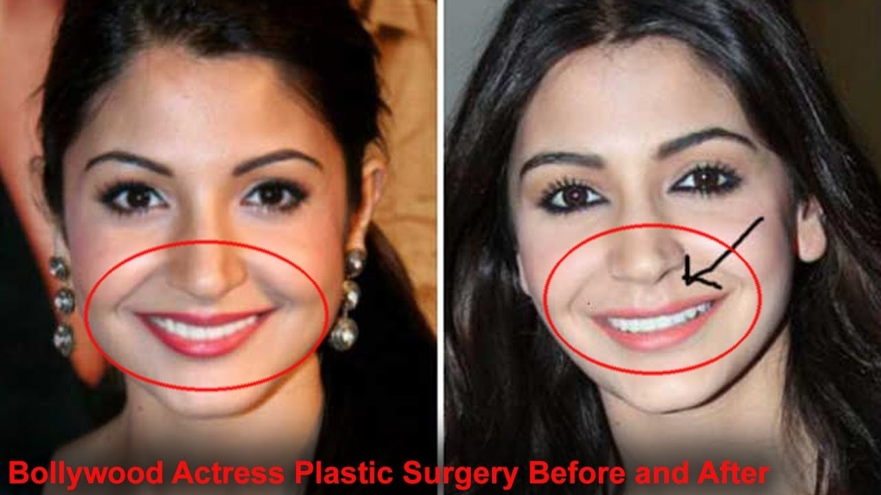 top bollywood actress before & after plastic surgery. - youtube