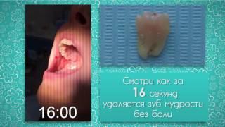Удаление зуба мудрости за 16 секунд! Реальное видео без монтажа.(Смотрите, как удаляют зуб мудрости. На это потребовалось всего 16 секунд. Коллектив стоматологической клин..., 2017-02-17T16:09:08.000Z)