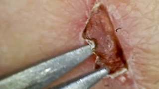 Magnified Scab Picking 2