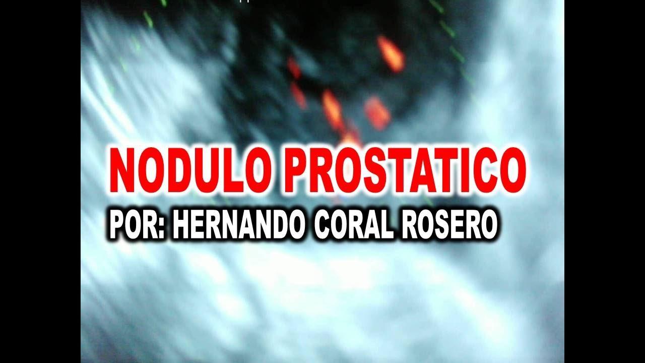nodulo na prostata benigno