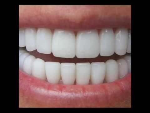 perfect smile veneers где можно купить