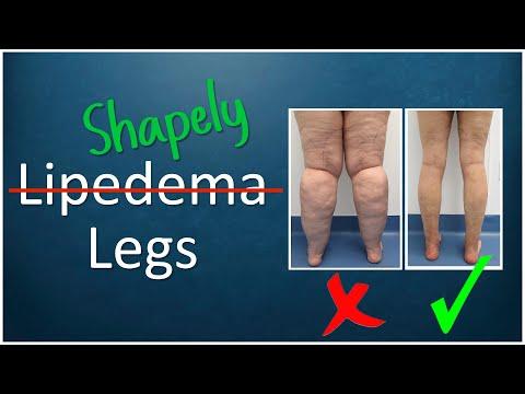 Lipedema Liposuction Surgery | Lipo 360° Legs Results | Cankles & Knees | Expert Dr. Thomas Su
