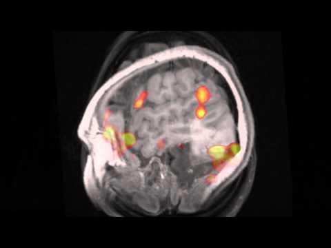 Definition fMRI