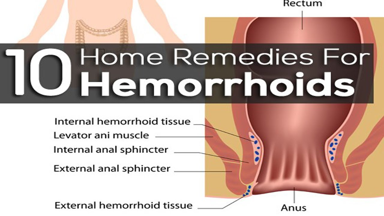 internal hemorrhoids | hemorrhoid symptoms | home remedies for, Human Body