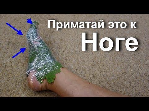 Мощнейшее бесплатное средство от грибка стопы. Микоз кожи. Вылечить грибок на ногах. Ай как просто?