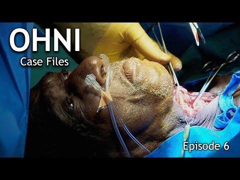 Belize Medical Mission: OHNI Case Files - Episode 6