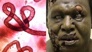10 Diseases That Could Wipe Out Humanity