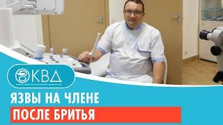 Фото Язвы на члене после бритья. Клинический случай №29