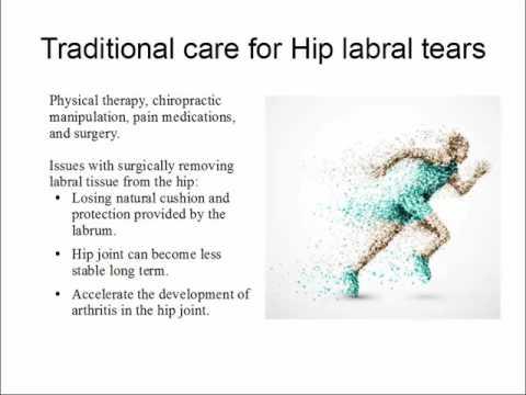 Regenexx  Hip Labral tear treatment
