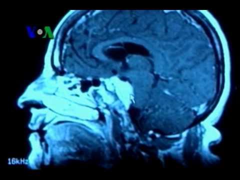 Vaksin Kanker Otak - Laporan VOA 19 Oktober 2010