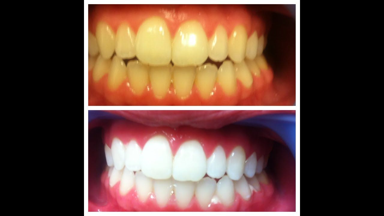 Teeth Whitening How To Get White Teeth Fast At Home In Hindi