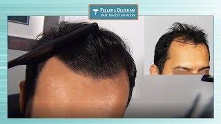 Feller and Bloxham Hair Transplants - Vidmoon