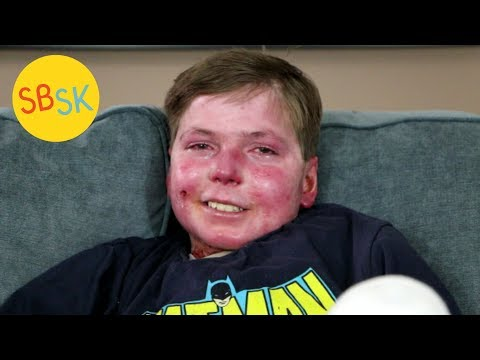 Living In A Body Of Open Wounds With Less Than Half His Skin (Epidermolysis Bullosa)