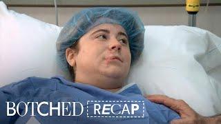 """""""Botched"""" Recap: Season 4, Episode 18   E!"""