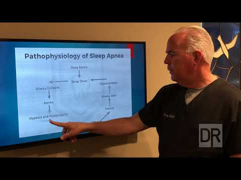 There's a Simple And Natural Way To Stop Snoring That Hardly Anyone Knows About This from YouTube · Duration:  2 minutes 53 seconds